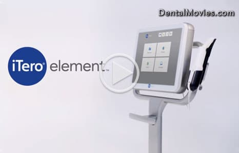 iTero-Digital-Impressions-Video-Thumbnail-Gottsegen-Orthodontics